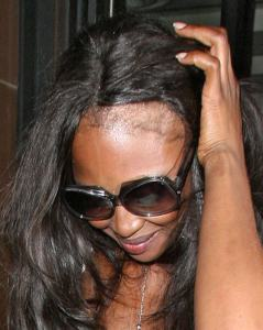 naomi-campbell-bald-from-hair-extensions